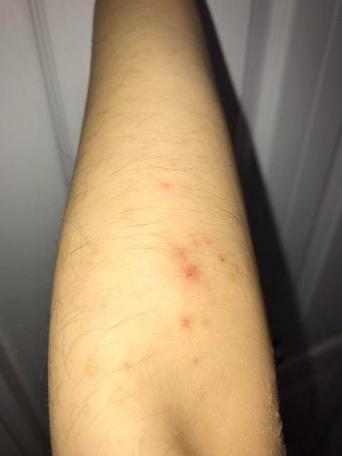 eczema or bug bites