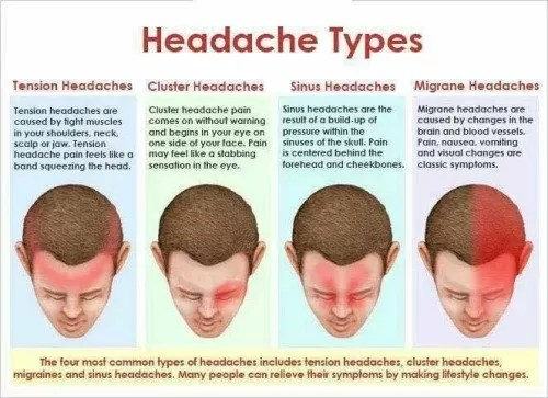 Migraine Pain Headache Types Causes And Sypmtoms