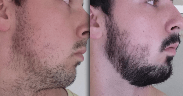 Right Side - After 3 months of taking taking Minoxil for beard