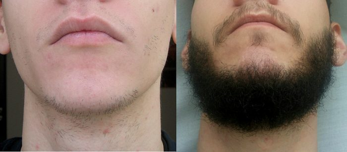 Front Side - Beard before and after photos using Rogaine for 1 year 4 months