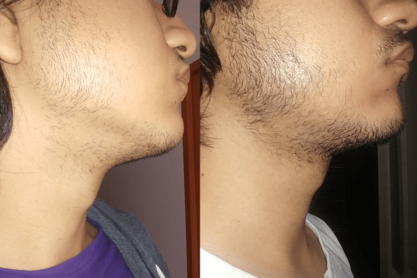 using minoxidil Before and After photos