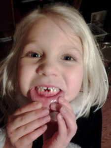 toothless sissy girl