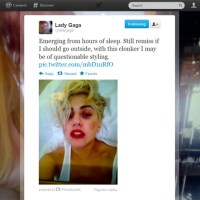 Lady Gaga Shows Off Black Eye After Accident With Dancer