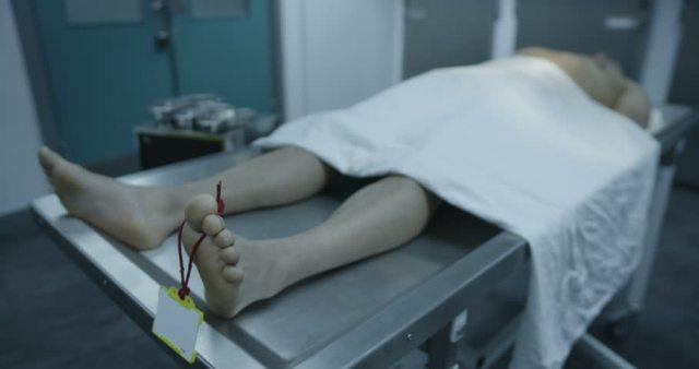 pancreatitis diagnosed at autopsy