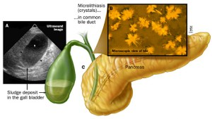 Biliary Microlithiasis image