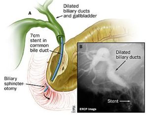 what is ercp
