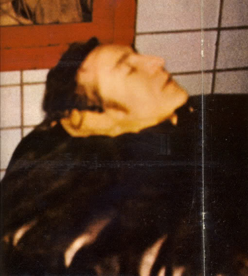 john_lennon_body_bag_death_photo_autopsy