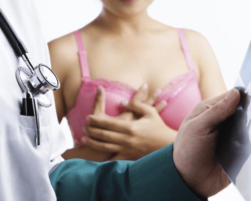 La mammographie, pourquoi et comment ça s'est passé ?