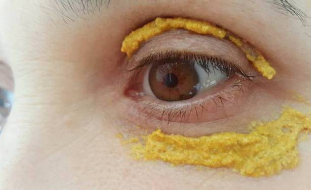 She Started Applying Turmeric Around Her Eyes, 10 Minutes Later. UNBELIEVABLE
