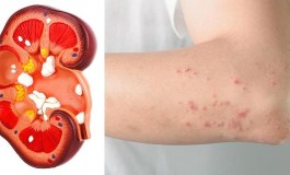 If Your Kidney Is In Danger, You Will Get These Signs From Your Body