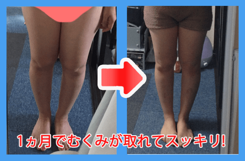 before_after_leg