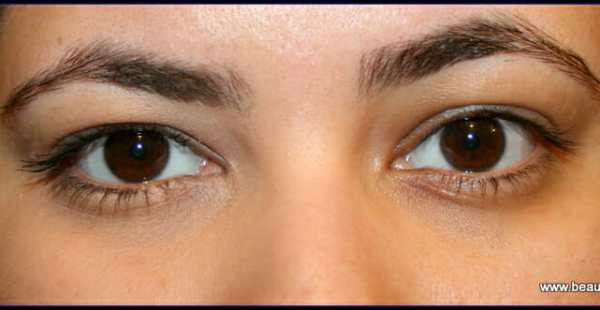 left eye - applied corrector  :  Right eye - nothing