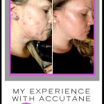 My experience and before and after results while on accutane to control adult acne. In this post I outline my results, the side effects and my skin care survival tips while using Accutane #accutane #acne