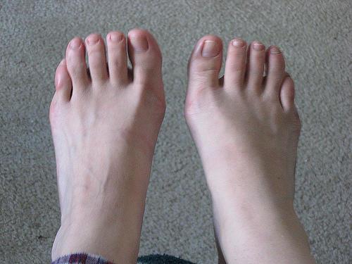 germanic-feet