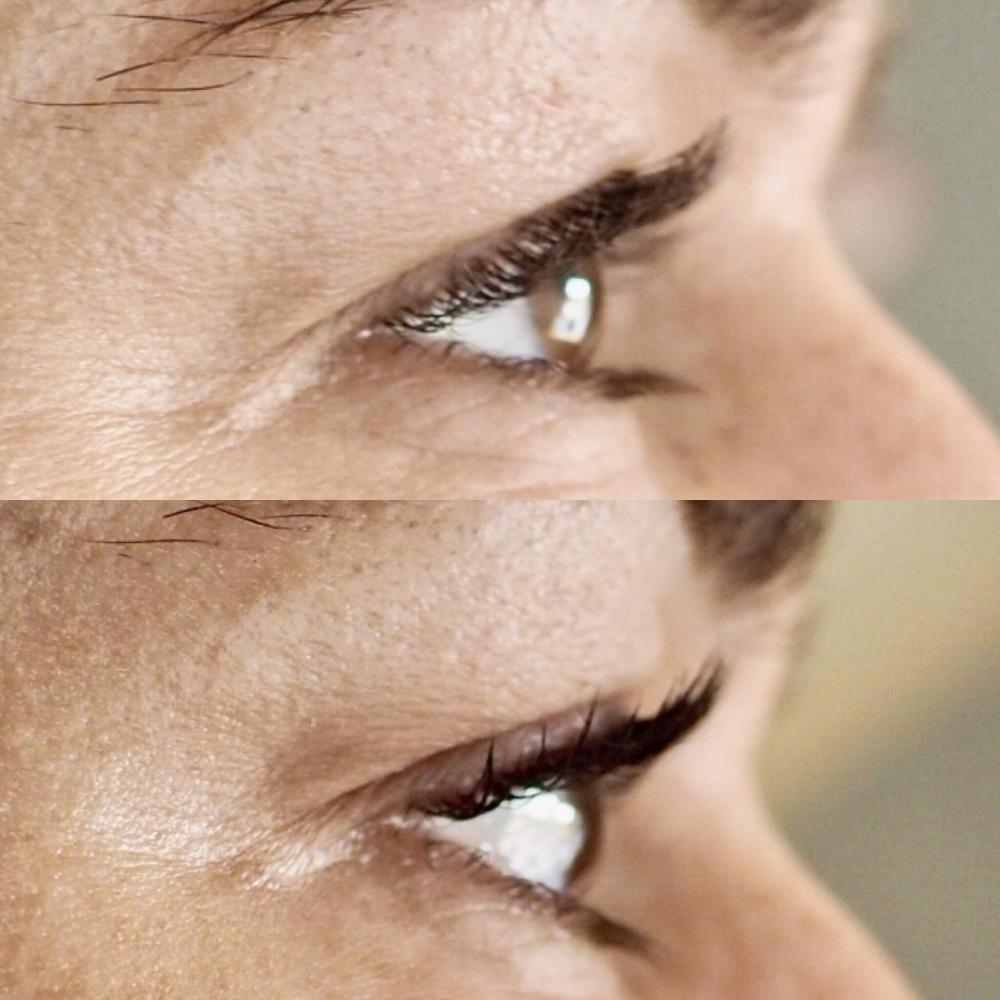 LVL Lash Enhance Treatment Review- Before and After, Side View