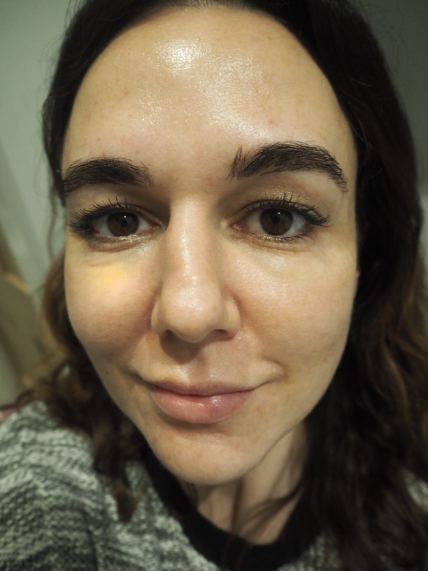The Ordinary Skincare After 5 Weeks full face view
