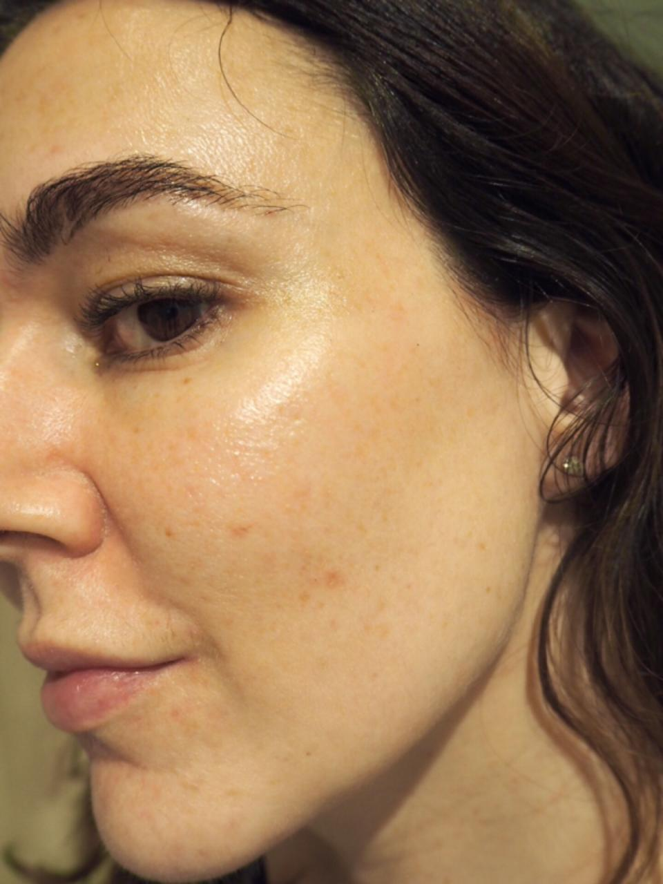 The Ordinary Skincare After 5 Weeks side face