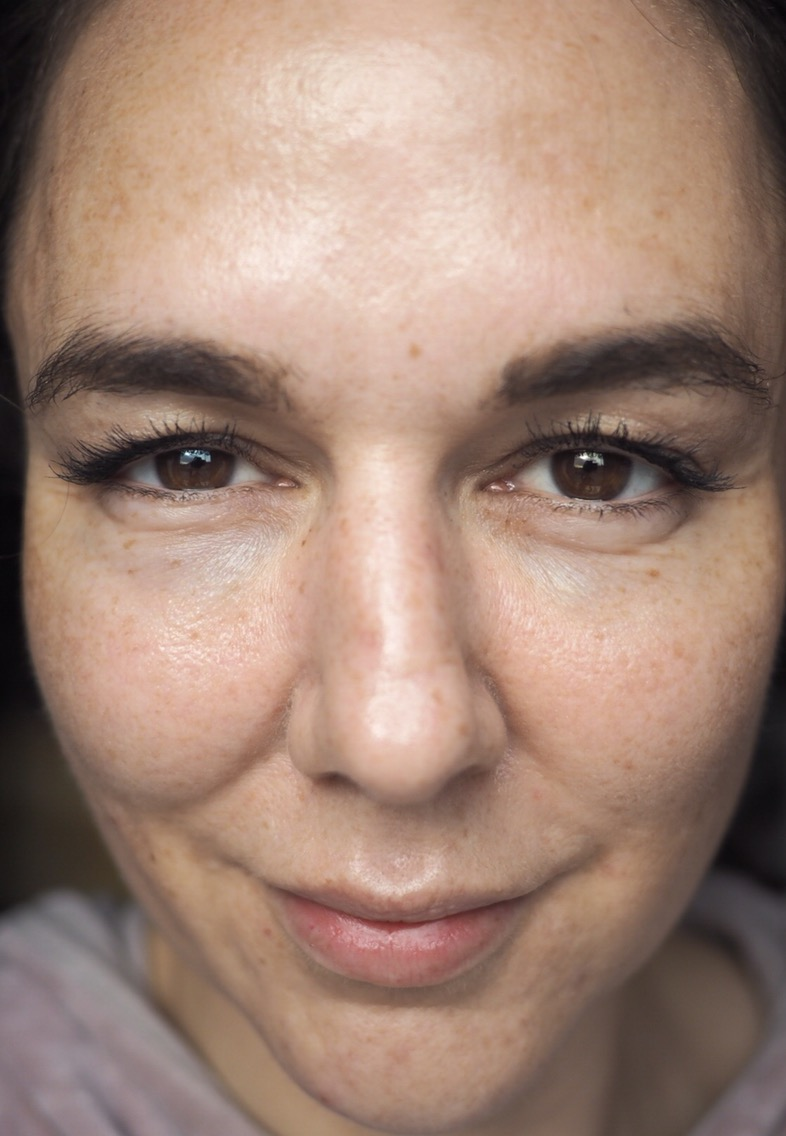 Skincare for Acne/Aging/Pigmentation- The Current Skin Situation- full face clear skin
