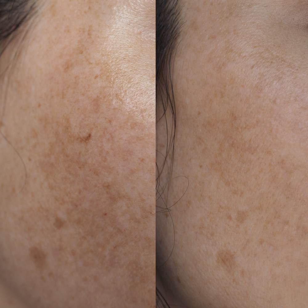 Re Pigment by NIOD- Before and After Picture