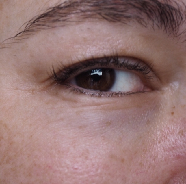 Yana Daily Collagen Shots by Image Skincare- Right Eye After