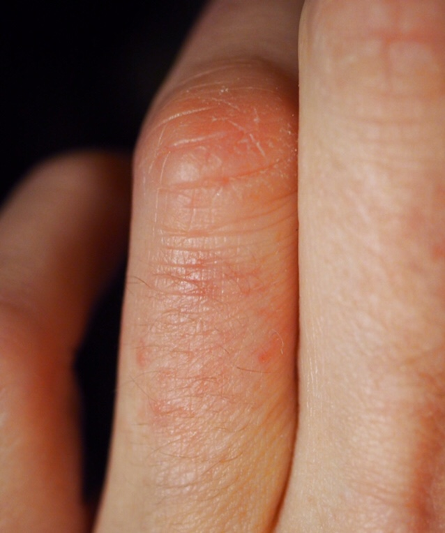Skintifique Protective Cream HPS and Cleanser P Review- close up of red rash on finger