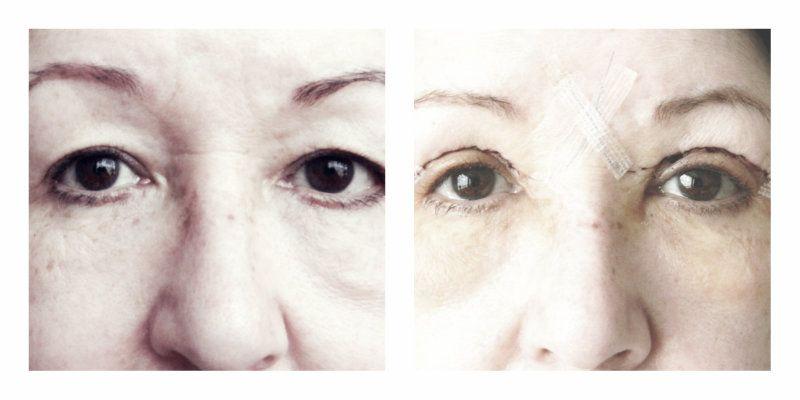 collage ooglidcorrectie
