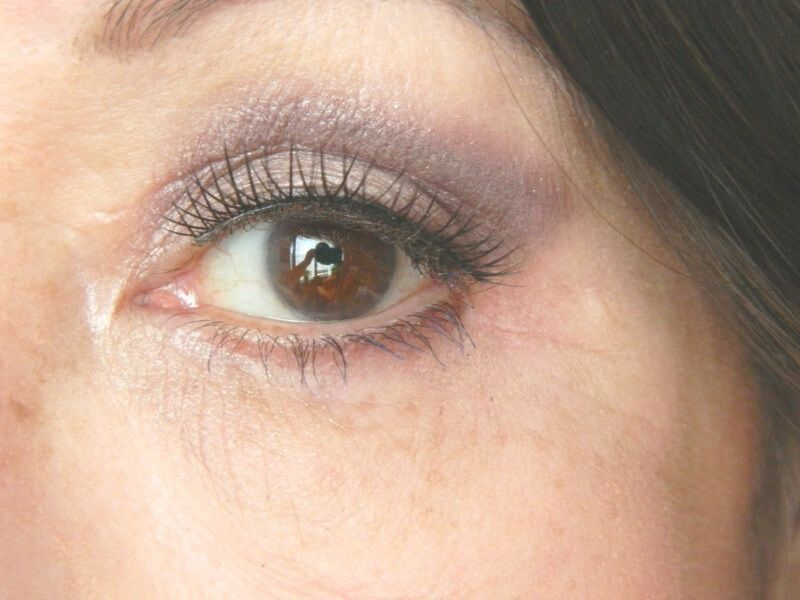 na ooglidcorrectie