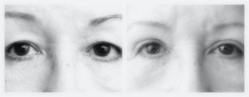 ooglidcorrectie front zwart wit