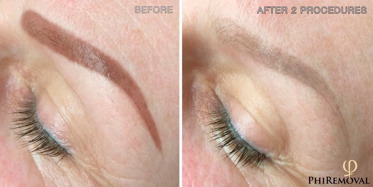 PhiRemoval Tattoo and Permanent Makeup Removal
