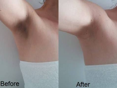 dark underarms,how to lighten dark underarms,how to get rid of dark underarms,how to get rid of dark underarms overnight,get rid of dark underarms,how to,underarms,how to remove dark underarms at home,dark underarms home remedy,dark underarms before and after,how to lighten underarms,how to take care of your underarms,tips to take care of underarms,how to remove dark underarms