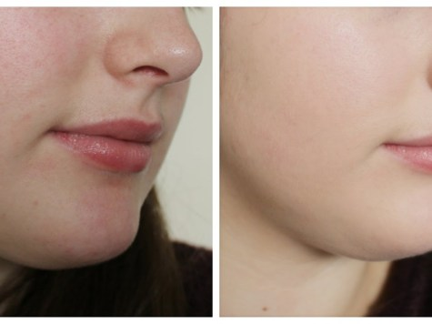 Only 7 Days - Remove DARK SPOTS, ACNE SCARS (2)