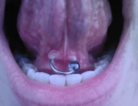 frenulum piercing for tongue
