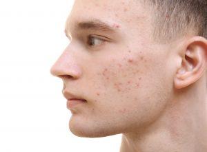 Akne während der Pubertät