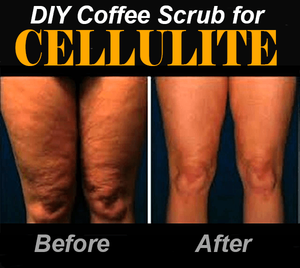 coffee scrub for cellulite before after