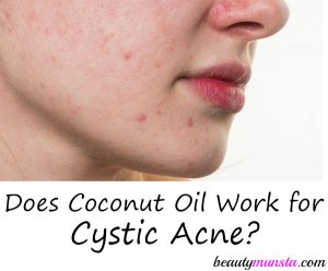 Cystic Acne and Coconut Oil – Does it Work?