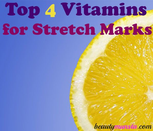 Stretch marks are an unavoidable part of many people's life. Especially if you're a woman, pregnancy stretch marks are bound to appear. But there are some remedies to help prevent them! Such as taking vitamins to prevent stretch marks! That's what we shall be looking at in this article