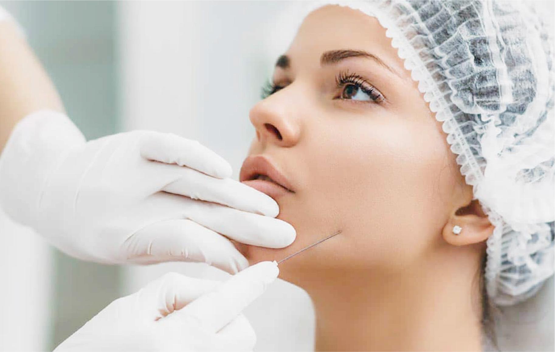Prosedur botox rahang