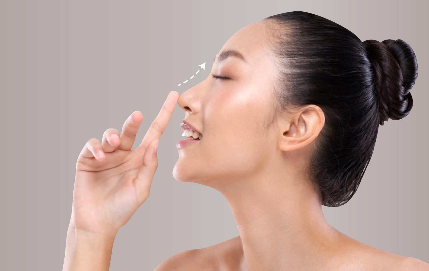 Tanam benang hidung permanen benarkah?