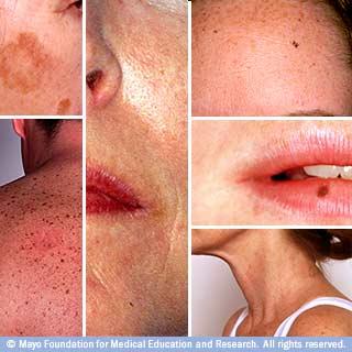 sun damage on your skin