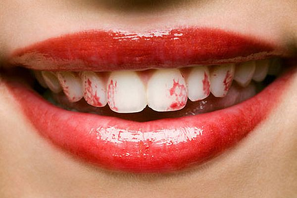 Lipstick stains on your teeth