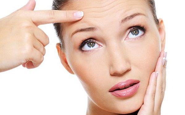 Wrinkles on skin