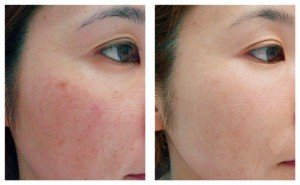 IPL Photo Facial Treatment