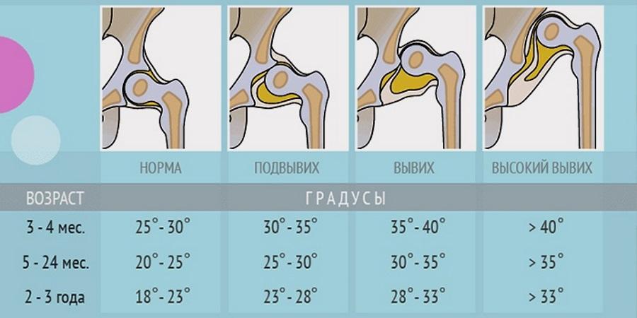 4 priemonės sausgyslių uždegimui gydyti – ingridasimonyte.lt