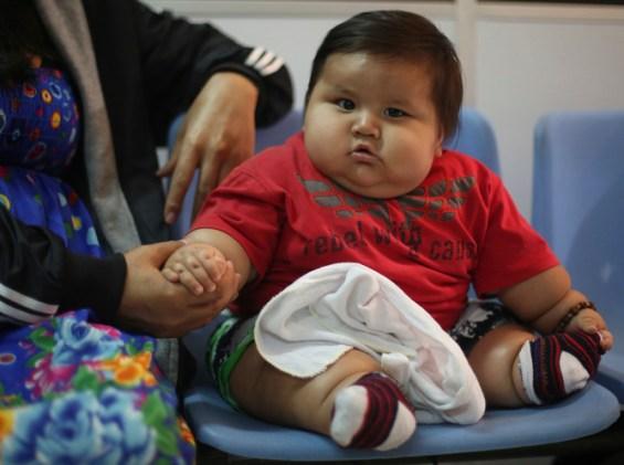 un enfant obese