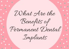 What Are the Benefits of Permanent Dental Implants