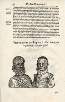 Father and son with Hypertrichosis page 16, Aldrovandi's Monstrorum historia, 1642. BBML
