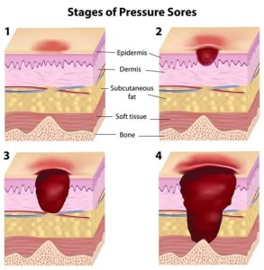 Four stages of pressure ulcers