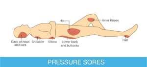 pressure points for skin breakdown