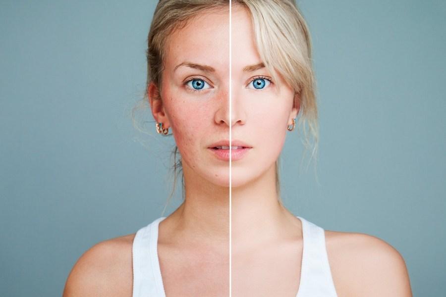 10 Skincare Rules for Redness-Prone Skin