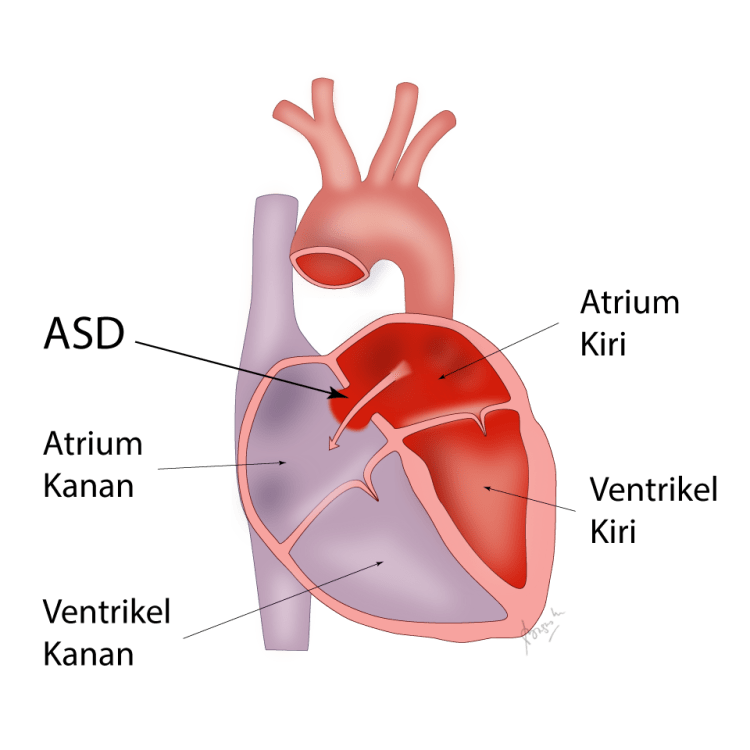 Atrial Septal Defect (ASD), lubang pada sekat pembatas serambi jantung.